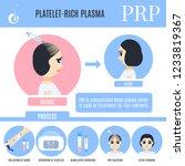 platelet rich plasma female...   Shutterstock .eps vector #1233819367