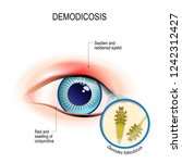 demodicosis of eyelid and red... | Shutterstock .eps vector #1242312427