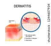 atopic dermatitis  atopic... | Shutterstock .eps vector #1244607934