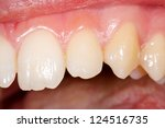 Small photo of A potshot made by the dentist with the healthy teeth of a young person.