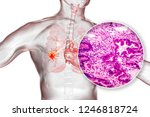 lung cancer  3d illustration... | Shutterstock . vector #1246818724