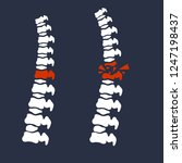 bones of the spine. the problem ... | Shutterstock .eps vector #1247198437