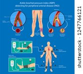 peripheral artery disease ankle ... | Shutterstock .eps vector #1247766121