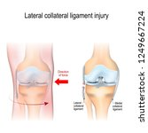 fibular collateral ligament... | Shutterstock .eps vector #1249667224