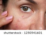 capillaries on the skin of the... | Shutterstock . vector #1250541601