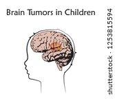 brain tumors  cancer in infants ... | Shutterstock .eps vector #1253815594