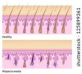 Normal hair and Alopecia areata - stock vector