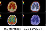 Stock photo pet ct scan of human brain axial view positron emission tomography high definition 1281190234