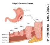 stages of stomach cancer.... | Shutterstock .eps vector #1283560027