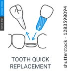 tooth quick replacement icon.... | Shutterstock .eps vector #1283598094