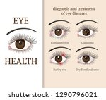 eye disease. most common eye... | Shutterstock .eps vector #1290796021