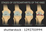 stages of osteoarthritis of the ... | Shutterstock .eps vector #1292703994
