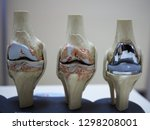Model Of Knee Joint Showing...