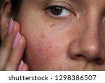 Capillaries On The Girl's Face