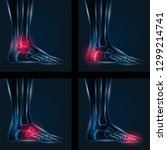 foot pain x ray 4 set. healthy...   Shutterstock .eps vector #1299214741