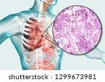 lobar pneumonia  grey hepatic... | Shutterstock . vector #1299673981
