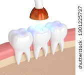 3d render of teeth with dental... | Shutterstock . vector #1301225737