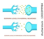 normal neurons and with... | Shutterstock .eps vector #1303399984