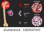leukemia and normal blood under ... | Shutterstock .eps vector #1303537447