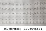 Small photo of Supraventricular tachycardia (SVT). Atypical AV nodal reentry tachycardia.