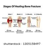 stages of healing bone fracture.... | Shutterstock .eps vector #1305158497