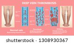 thrombosis. from normal blood... | Shutterstock . vector #1308930367