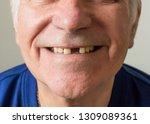 Old Man Senior Face Closeup...
