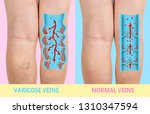 varicose veins on a female... | Shutterstock . vector #1310347594