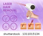 laser hair removal. icons of... | Shutterstock .eps vector #1311015134