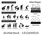 celiac disease signs and... | Shutterstock .eps vector #1312644014
