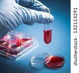 Biochemistry Of Blood Tests....