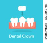 tooth crown. dentistry and... | Shutterstock .eps vector #1322857781
