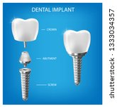 Human teeth and dental implant cut scheme, vector illustration. Dental implant structure with all parts: crown, abutment, screw.  medical pictorial.