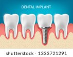human teeth and dental implant... | Shutterstock .eps vector #1333721291