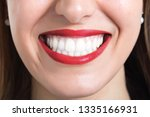 close up of smile with white... | Shutterstock . vector #1335166931