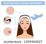 hyaluronic acid filler... | Shutterstock .eps vector #1339403027