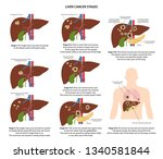 four stages of liver cancer... | Shutterstock .eps vector #1340581844