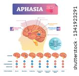 aphasia vector illustration.... | Shutterstock .eps vector #1341923291
