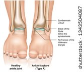 ankle joint fracture type a... | Shutterstock .eps vector #1343504087
