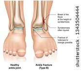 ankle joint fracture type b... | Shutterstock .eps vector #1343504444