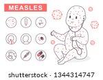 measles vector infographics.... | Shutterstock .eps vector #1344314747