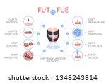 fue vs fut medical infographics.... | Shutterstock .eps vector #1348243814