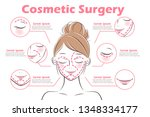 the girl with cosmetic surgery...   Shutterstock .eps vector #1348334177