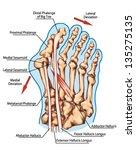 hallux valgus    pathogenic... | Shutterstock .eps vector #135275135