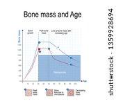 bone mass for male and female.... | Shutterstock . vector #1359928694