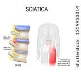 sciatica. scheme with vertebrae ... | Shutterstock . vector #1359933314