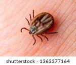 Encephalitis Virus or Lyme Borreliosis Disease Infectious Dermacentor Tick Arachnid Parasitic Insect on Skin Macro