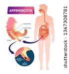 appendicitis vector... | Shutterstock .eps vector #1367308781