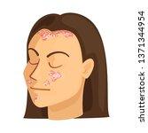 vector design of psoriasis  and ...   Shutterstock .eps vector #1371344954