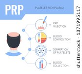 platelet rich plasma injection... | Shutterstock .eps vector #1371995117